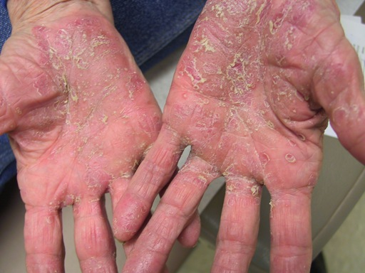 Psoriasis types: Pustular | National Psoriasis Foundation