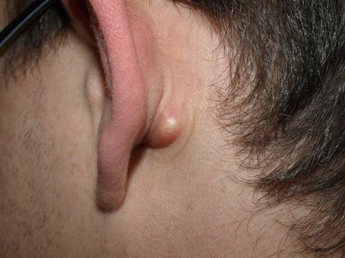 skin cyst