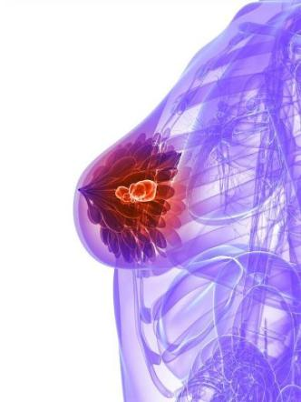 breast fibroadenoma