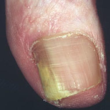 Onychomycosis: Treatment of infection caused by fungi ...