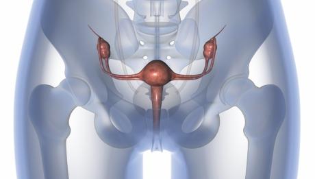 uterine prolapse