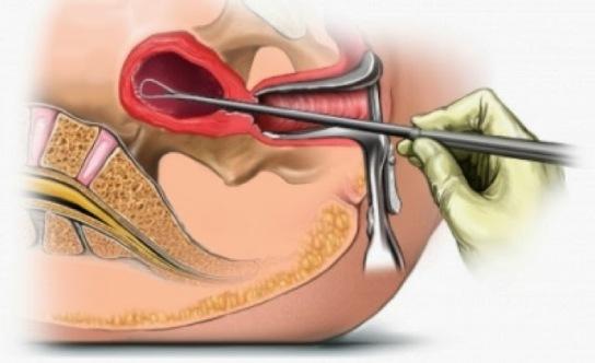 hypermenorrhea treatment