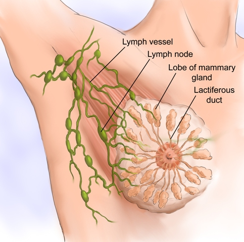 lumph nodes and breast cancer