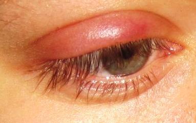 symptoms of stye