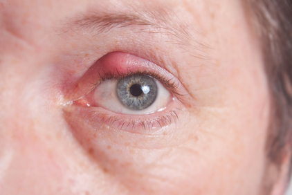 chalazion in the eye