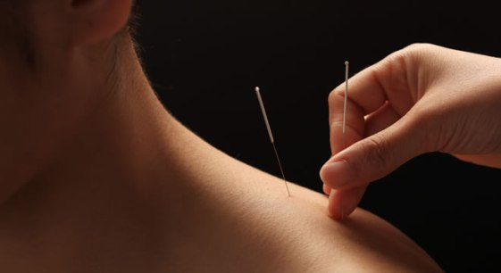 acupuncture technique