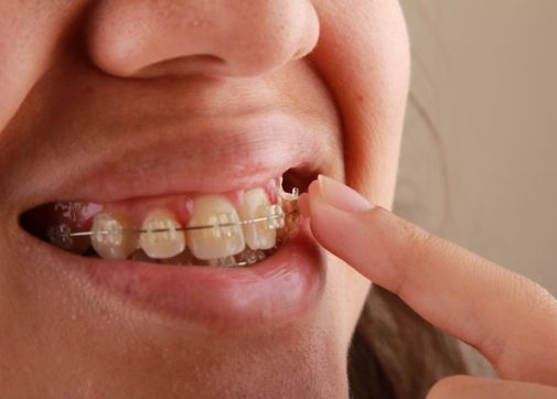 using dental brackets