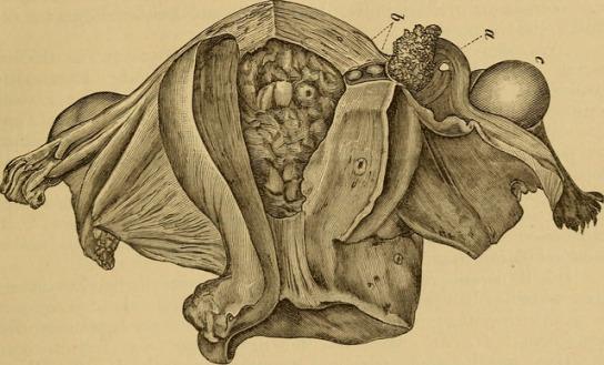 uterine polyp