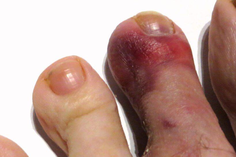Purple Toe